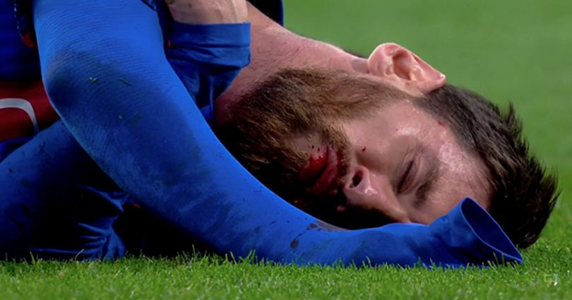 Why you should not make messi angry