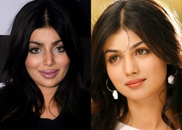 ayesha takia before after surgery